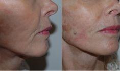 Lifting Facial Silhouette Soft - Cliché avant - Dr Simon Lamquin