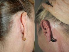 Lifting du visage - Cicatrices postérieures