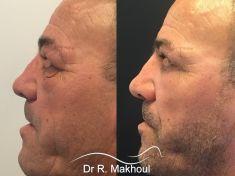 Blépharoplastie - Cliché avant - Dr Rani Makhoul
