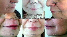Dr Marilyne Plasqui - Comblement de la lèvre inférieure et de la lèvre supérieure à l