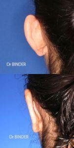 Otoplastie (Chirurgie esthétique des oreilles) - Cliché avant - Dr Jean-Philippe BINDER