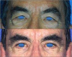 Blépharoplastie - Cliché avant - Dr Alexandre Mertens