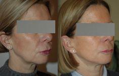 Lifting du visage - Cicatrices devant et derrière l'oreille