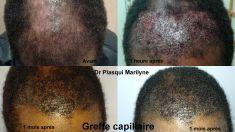 Traitements de la chute des cheveux - Microgreffe capillaire sur peau noire avec résultats (cf après) immédiats.