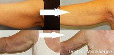 Lifting des bras - Cliché avant - Dr Robin Mookherjee