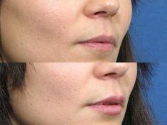 Augmentation des lèvres (injection de graisse) - Cliché avant - Dr Frank Trepsat
