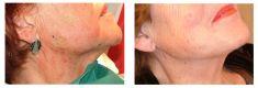 Lifting facial par fils tenseurs - PDO - Cliché avant
