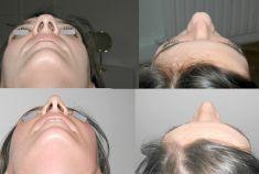Dr Jacques Buis - Affinement de la pointe Voie fermée endo nasale