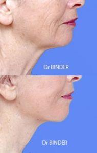 Lifting du visage - Cliché avant - Dr Jean-Philippe BINDER