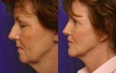 Mini lifting (lifting cervico-facial) - Mini lift Lifting endoscopique du front
