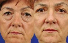 Blépharoplastie - Correction des paupières supérieures Correction de la peau des paupières inférieures Correction des poches sous les yeux