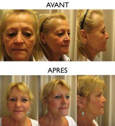 Lifting du visage - Cliché avant - Dr Christian Zuber