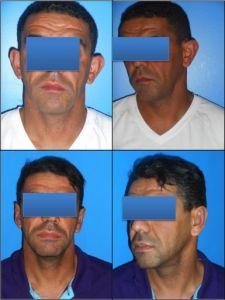Otoplastie (Chirurgie esthétique des oreilles) - Cliché avant - Dr Alexandre Mertens
