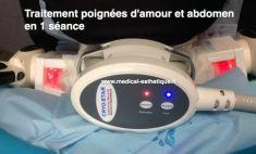Cryolipolyse - Cliché avant - Dr AMAT - ????Greffe FUE 2.0 Medic Xpert