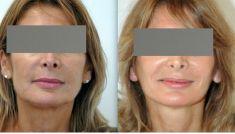 Mini lifting (lifting cervico-facial) - Cliché avant