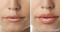 Augmentation des lèvres (acide hyaluronique) - Cliché avant - Dr Franck Benhamou