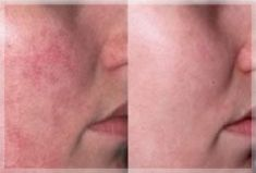 Suppression des veines par laser (taches de naissances, rougeurs) - Cliché avant
