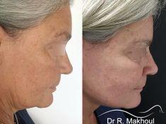 Lifting du cou - Platysmasuspension permettant de redéfinir le cou et de redessiner l