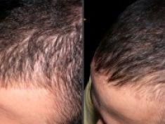 Traitements de la chute des cheveux - Cliché avant - RS Esthétique - Centre d'amincissement & remodelage de la silhouette anti-âge visage et corps sans chirurgie