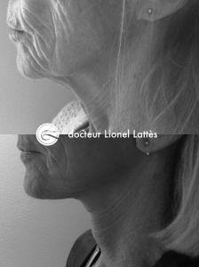 Lifting du cou - Cliché avant - Dr Lionel Lattès