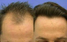 Greffe de cheveux - Implanter des cheveux: transplants capillaires: 4800 greffons selon la méthode microchirurgicale de transplantation capillaire.  Beau résultat surtout d'aspect très naturel.