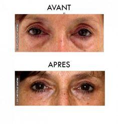 Blépharoplastie - Cliché avant - Dr Christelle Santini