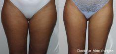 Liposuccion - Cliché avant - Dr Robin Mookherjee