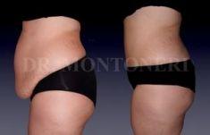 Abdominoplastie - Cliché avant - Dr Sebastiano Montoneri
