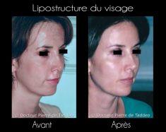 Lipofilling ou autogreffe de tissu graisseux - Cliché avant - Dr Pierre de Taddeo