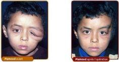 Chirurgie réparatrice du visage - Cliché avant - Dr Gérald Franchi MD