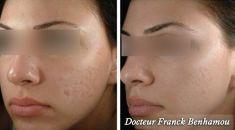 Traitement des cicatrices au laser - Cliché avant