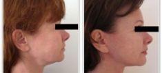 Lifting du visage - Cliché avant - Dr David Picovski