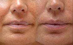 Augmentation des lèvres - Cliché avant - Dr James Schinazi