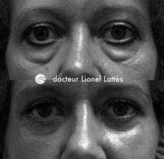 Blépharoplastie - Cliché avant - Dr Lionel Lattès