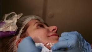 V-Lifting, traite le relâchement de l'ovale du visage et du corps