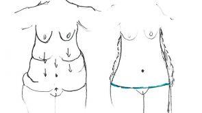 Chirurgie de la silhouette, body lift
