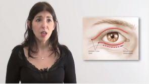 Blepharoplastie ou chirurgie esthétique des paupières