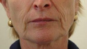 Lifting composite du visage et du cou