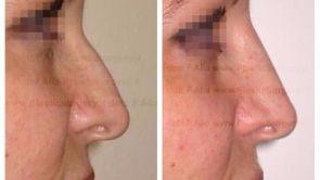 Rhinoplastie médicale ou correction du nez par injections de produits de comblement
