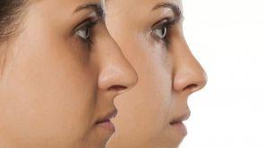 Choisir un bon chirurgien esthétique pour votre rhinoplastie, les 10 conseils du Dr Franchi