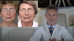 QUAND FAIRE UN LIFTING ? QUEL EST L'AGE IDEAL POUR UN LIFTING ET LEQUEL? Dr J- BUIS