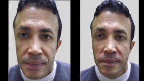 Correction de la ptose (chute) du visage avec des fils tenseurs résorbables