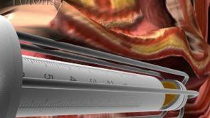 Le laser Spéculum, Vaginoplastie