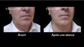 Lifting du visage médical : Ultherapy (HIFU)