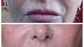 Beauté du visage : augmenter les volumes ou améliorer la finesse des traits ?