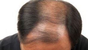 Traitements de la chute des cheveux