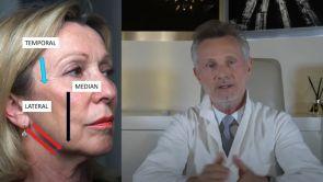 OVALE ET COU MINILIFITING, LIFTING OU LIFTING MALAIRE, LEQUEL CHOISIR ET COMMENT ? Dr J BUIS