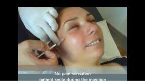 Injection des rides sans douleur (Toxine botulique)