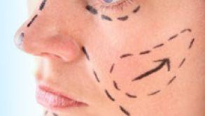 Lifting du visage – particularités à savoir
