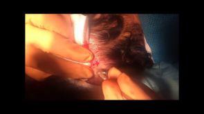 FEU méthode sans cicatrice pour greffe de cheveux